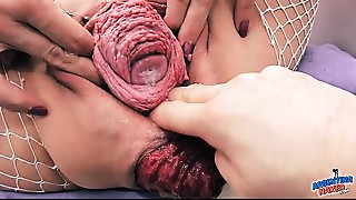 Almost all Incredible Prolapse Scene! Cervix, Fisting, Max Stretch