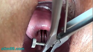 Cervix stretching wide with speculum and goo insertion in uterus